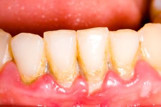 Gingivitis & Periodontitis: Symptoms & Treatment of Gum
