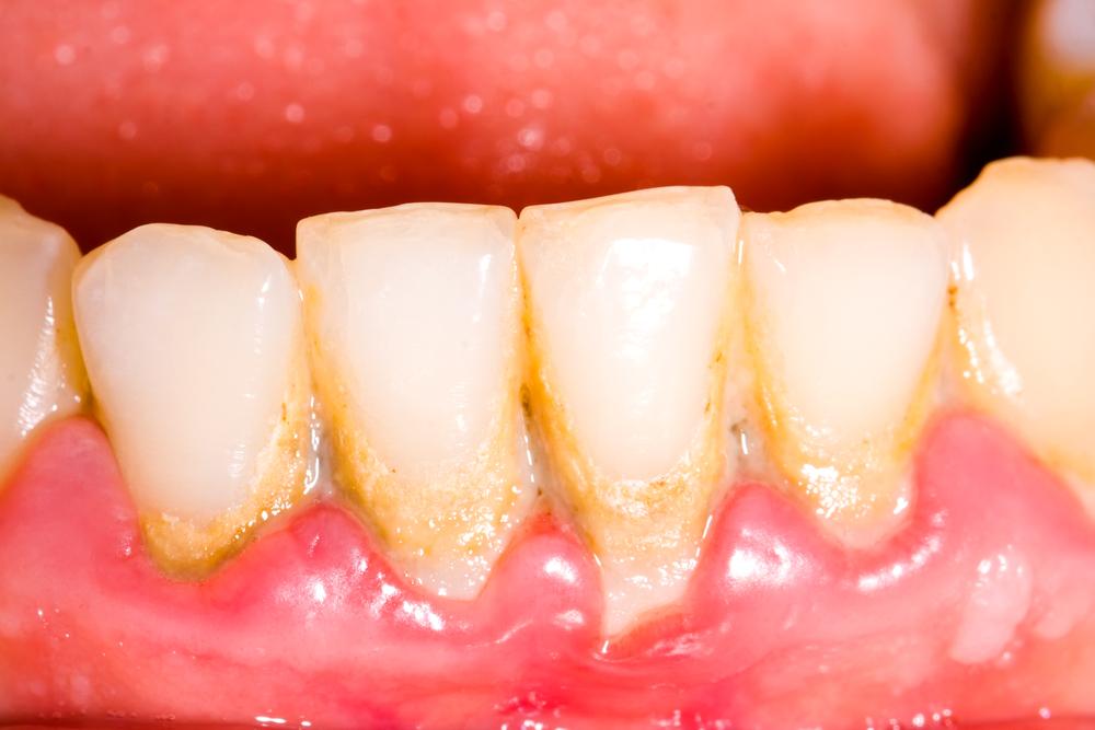 Gingivitis Periodontitis Symptoms Treatment Of Gum Disease Live Science