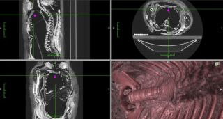 A mummy gets its empty chest cavity reconstructed via CT scan