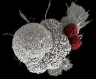 This colored scanning electron micrograph of an oral squamous cancer cell (white) being attacked by two cytotoxic T cells (red), part of a natural immune response.