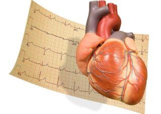 heart-ekg-11070502