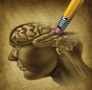 Human brain being erased