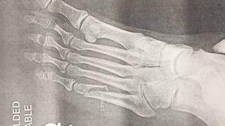 Axl Rose's broken foot