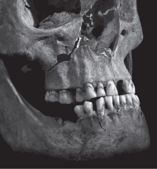 A photograph of Richard III's jaw and face show penetrating injuries to the maxilla, or upper jaw.