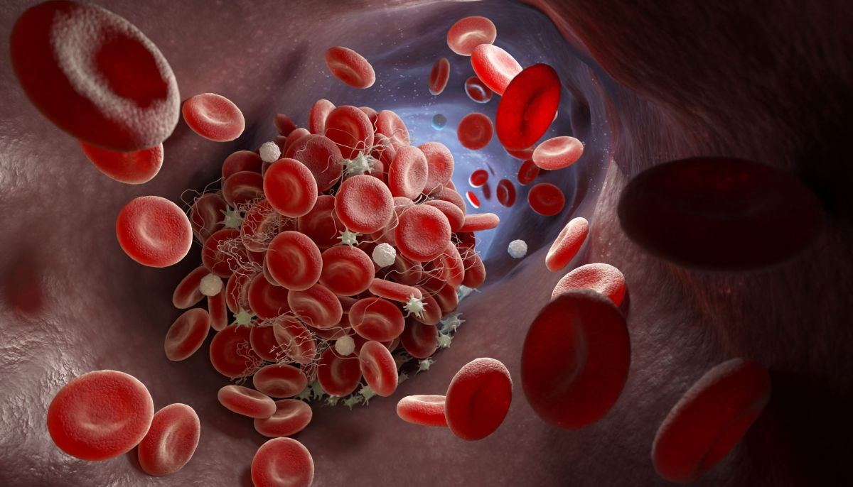 Possible cause of COVID-19 blood clots found