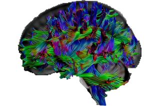 "With a special kind of MRI called ""diffusion tensor imaging,"" the researchers were able to visualize pathways in the brain."