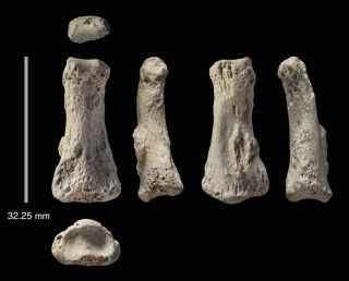 Human finger bone