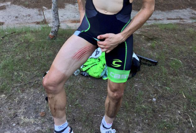 andre cardoso chainring injury