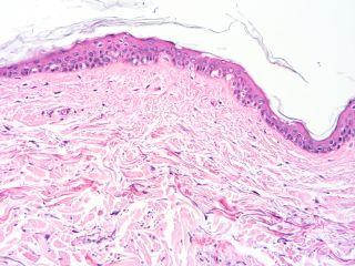 skin, histology, skin tissue
