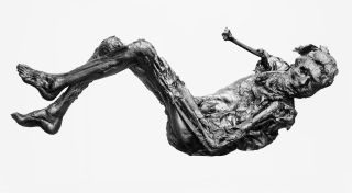Borremose Man: This body, dating from around 840 B.C., was found preserved in a peat bog in Denmark in 1946.