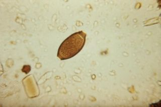 human whipworm, whipworm, Trichuris trichiura