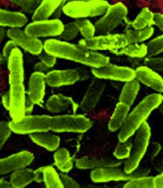 Pseudomonas aeruginosa bacterium grown onboard the space shuttle Atlantis