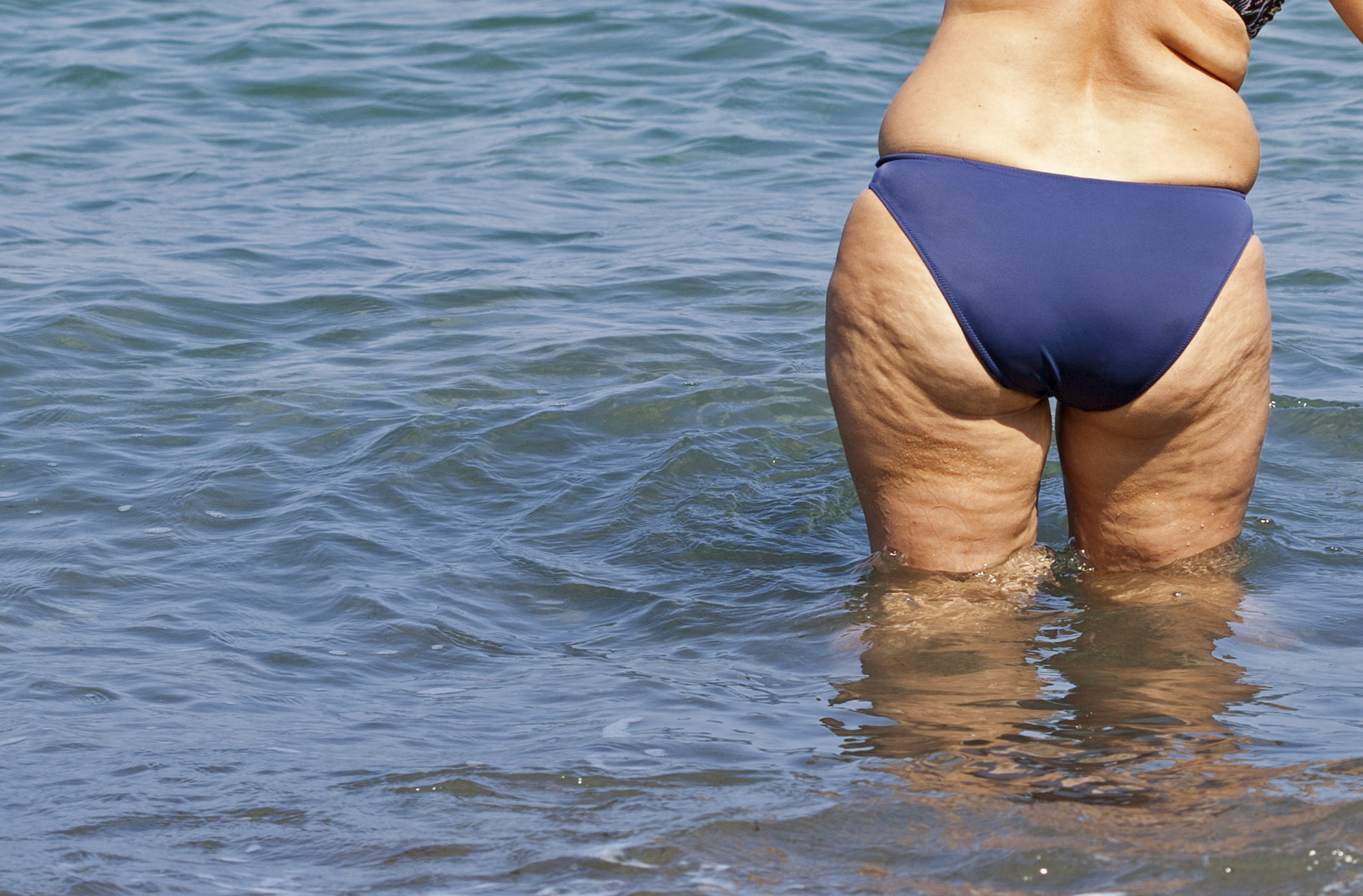 The Best Cellulite Treatment Learning They Asbolutely Do Not Work
