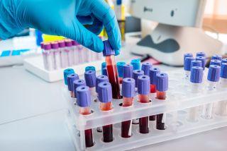 Blood sample tubes.