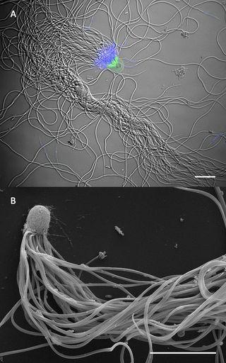 Sperm bundles of the desert ant <em>Cataglyphis savignyi</em>.
