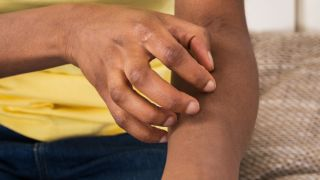 close-up of woman's hand scratching an itch on her arm