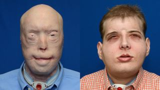 face transplant, facial transplant, before after