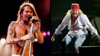Axl Rose, before and after