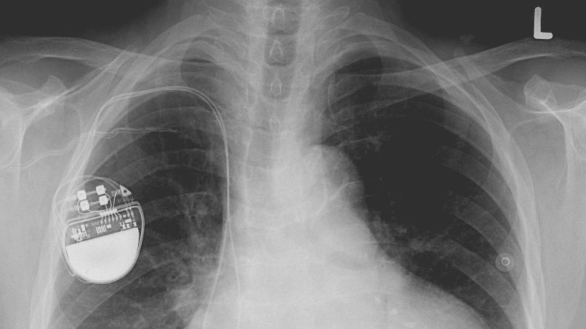 Life-saving pacemakers could be hacked with malware