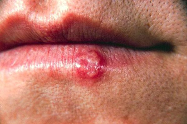 Herpes Pictures Symptoms Of Herpes Simplex Live Science