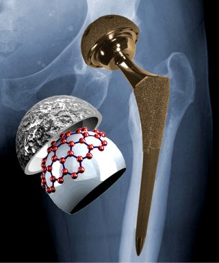 an X-ray of the hip region with a metal-on-metal implant superimposed and a schematic illustrating graphitic material on the surface of the implant. The red spheres represent the positions of the carbon atoms in a single layer of graphite.