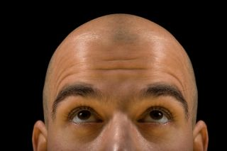More Than 200 Baldness-Linked Genetic Markers Found | Live