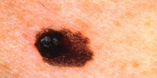 melanoma-100608-02