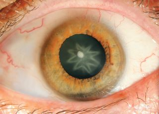A close-up of a man's eye reveals a star-shaped cataract.