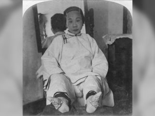 "A high caste lady's feet were bound to form the ""lotus shape,"" in China around 1900."