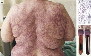 Photo of a rash on a woman's back, images of blood cells and vials of the patient's blood
