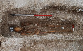 A strain of leprosy, found in this skeleton of a medieval pilgrim at a UK burial site, has been genotyped.