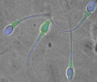 mutated sperm
