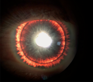 "A man's eye exam revealed an eerie ""glow"" in his iris, which was a sign of a rare disorder that caused his eye pigment to flake off."