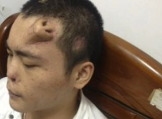 a man growing a replacement transplant nose on his forehead