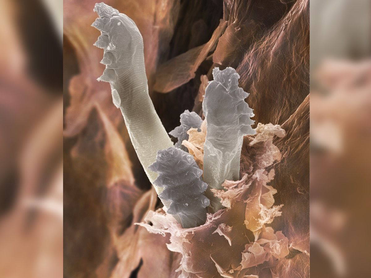demodex folliculorum on hair