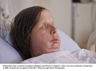 face-transplant-110811-02