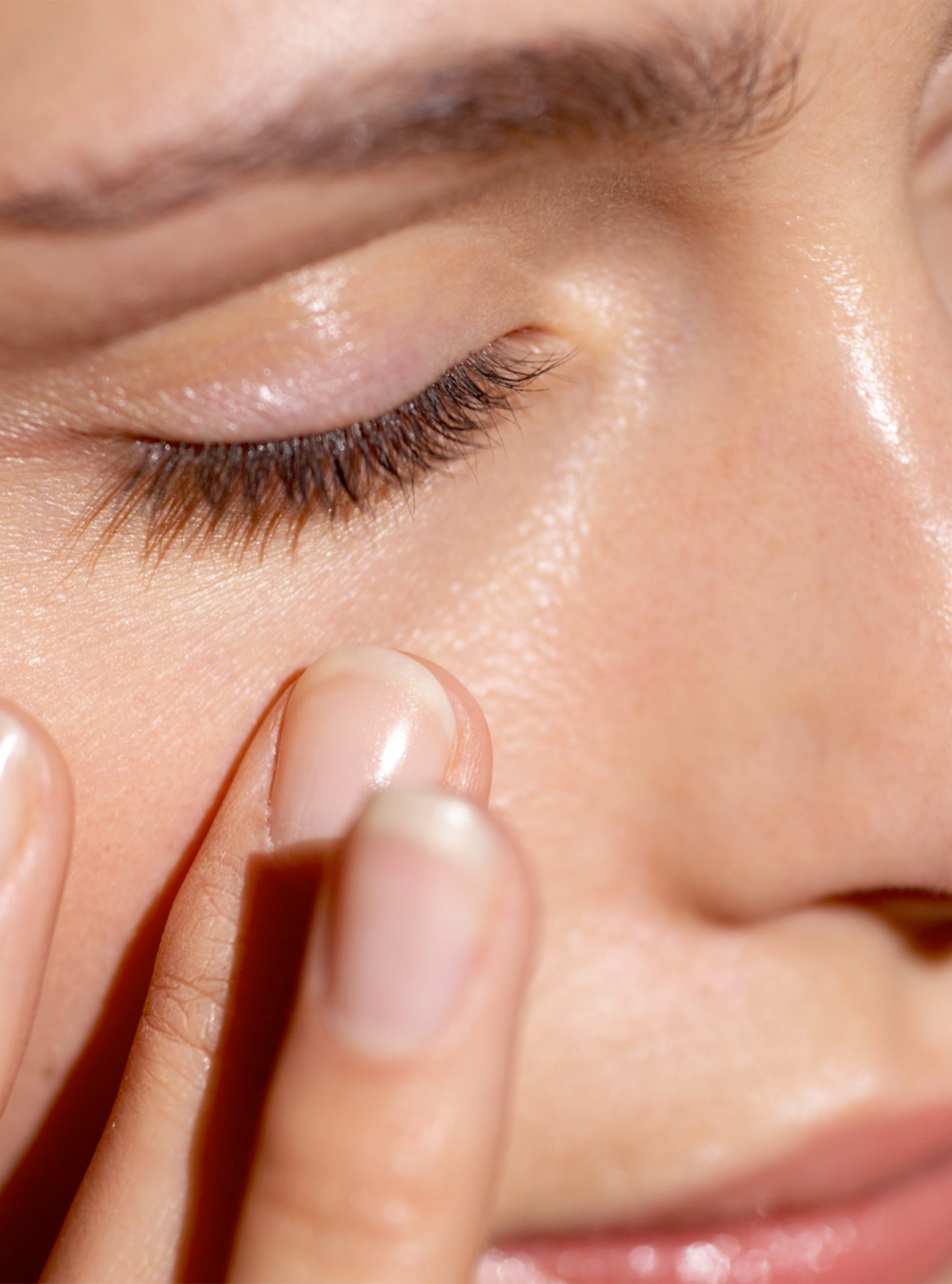 Tips For Treating Eczema