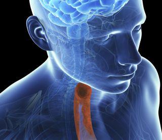 Throat graphic, eosinophilic esophagitis, EoE, Dr. Princess Ogbogu