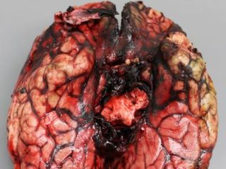 A view of the base of the brain with hemorrhage of the arteries.