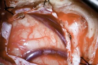 close-up image of an open brain during live-tweeted surgery