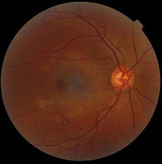 Ophtalmogram of a human eye.