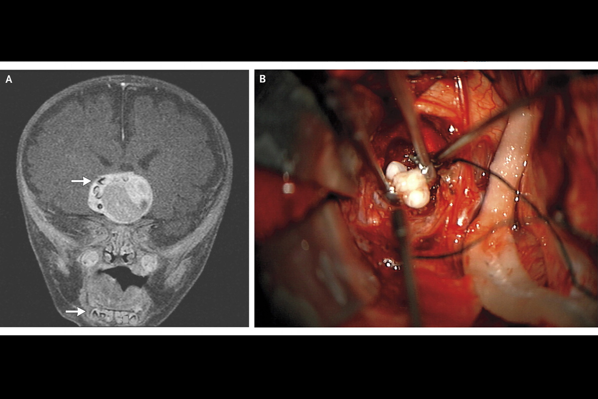 Brain scan of the boy's tumor and an image of the teeth removed during surgery.