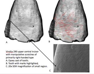 Scratch marks on the teeth of ancient humans indicate they were mostly right-handed.