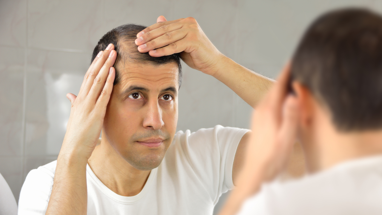 Hair Transplant: The Solution to Going Bald