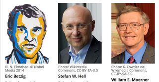 The 2014 Nobel Prize in Chemistry has been awarded to three scientists for their light microscopy achievements.