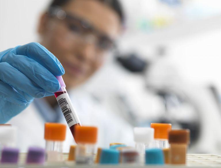 Menopause blood test