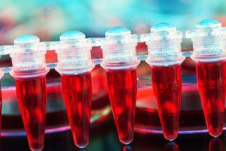 Stem cell transplant.