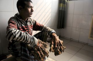 "Abul Bajandar, known as the ""tree man,"" had extensive, wood-like warts on his hands."