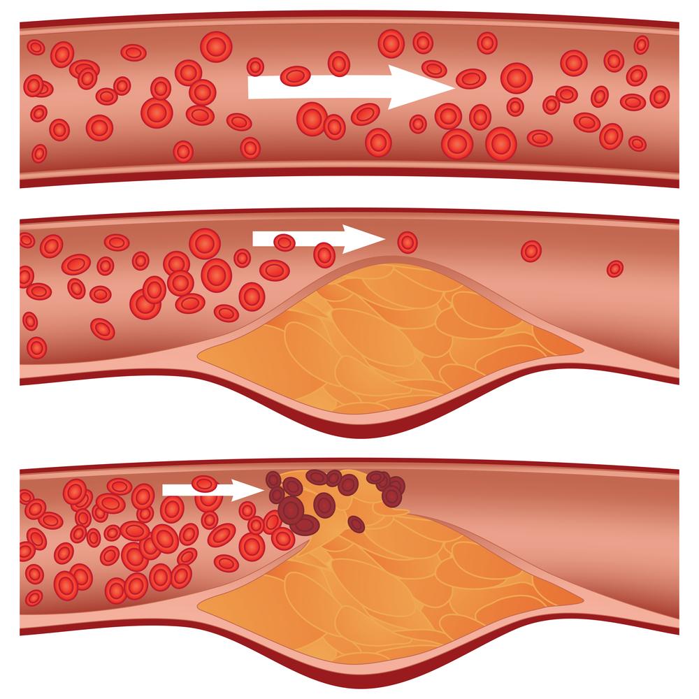 Càng nhiều cholesterol sẽ càng tăng nguy cơ tắc mạch máu.