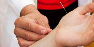 acupuncture-100719-02